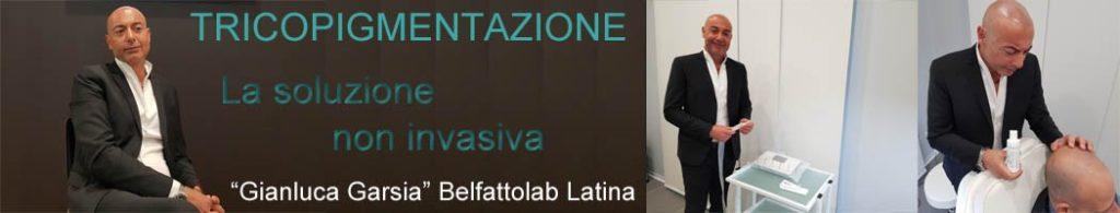 calvizie-latina-2